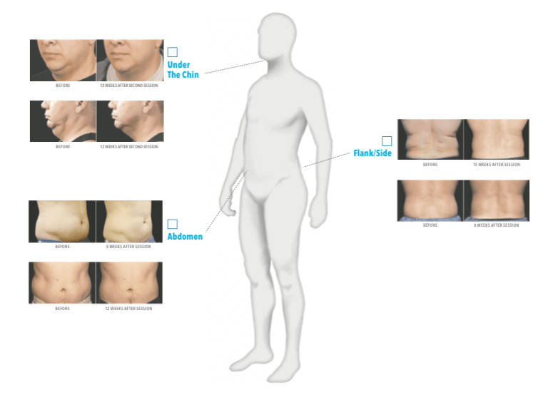 CoolSculpting Treatment Areas Male